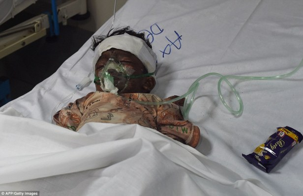 329B755C00000578-3511528-An_injured_Pakistani_child_victim_of_a_suicide_blast_rests_in_a_-a-7_1459151759239.jpg